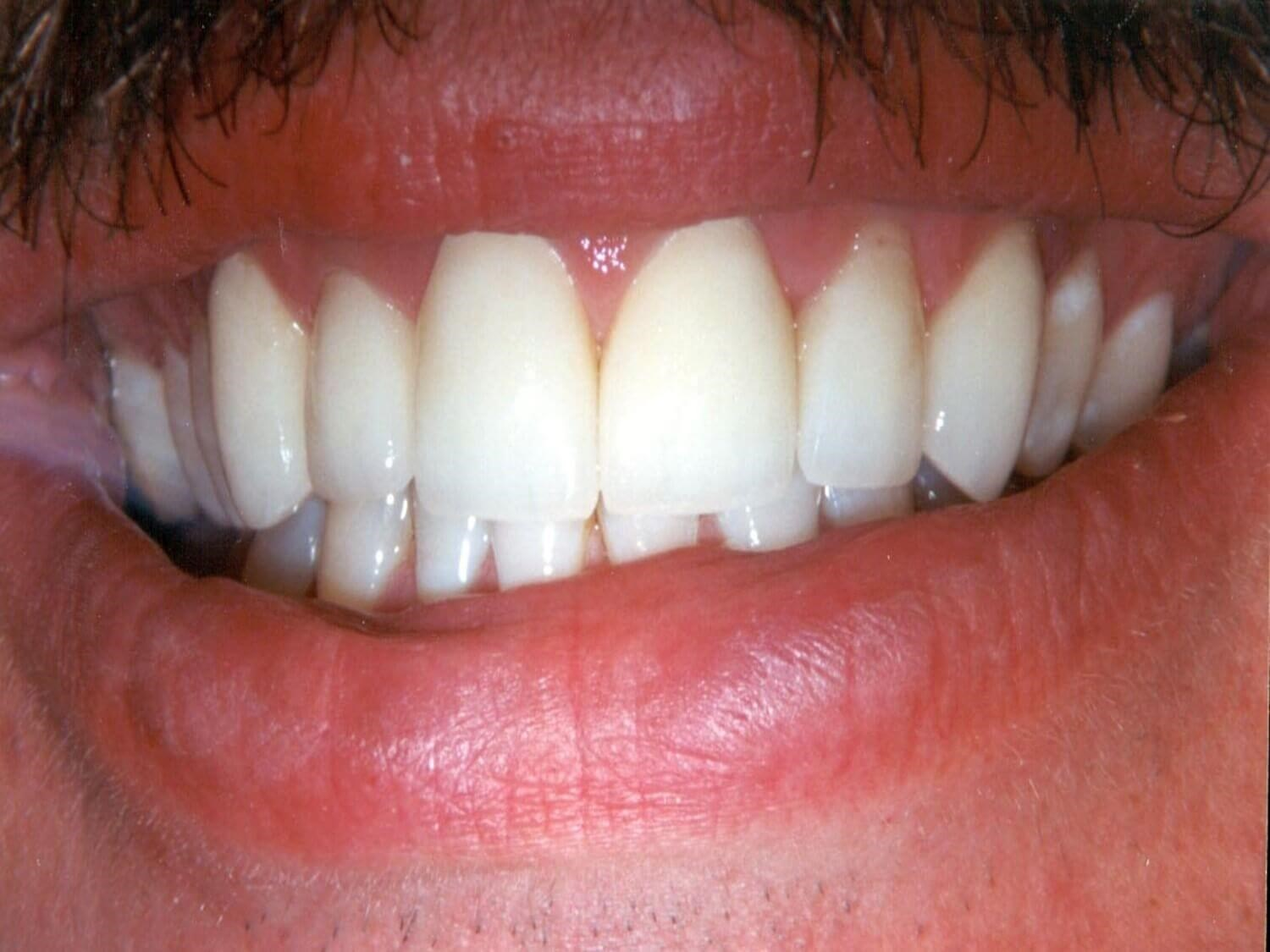 Anterior Crown After